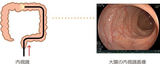 鏡 検査 大腸 内 視